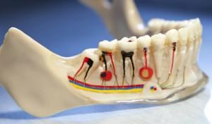 endodoncija-slika