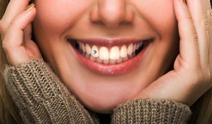 Gioielleria dentale
